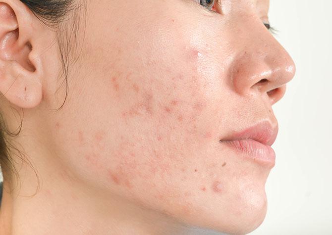 Health Condition Acne