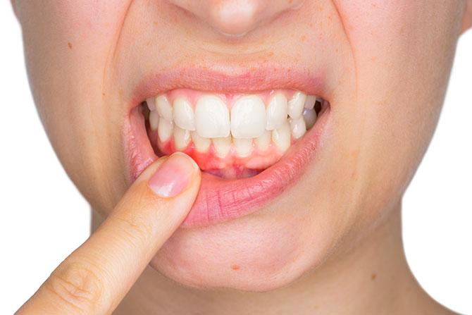 Gingivitis Gum Disease