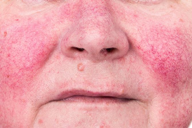 rosacea face rash