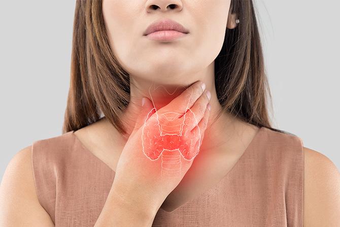 hyperthyroid woman overlay thyroid health