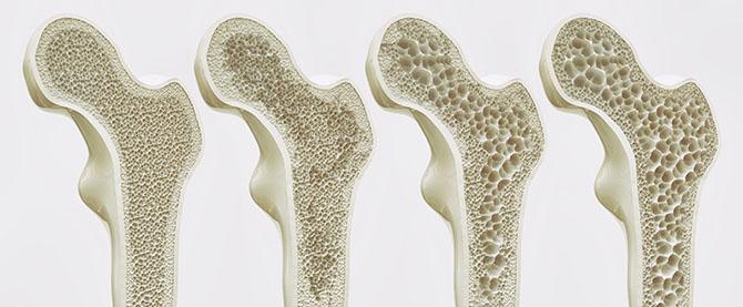 osteoporosis bone loss