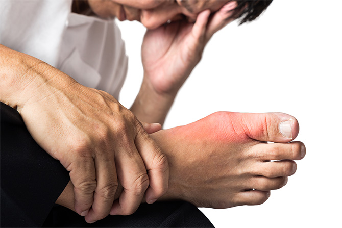 gout foot pain swelling