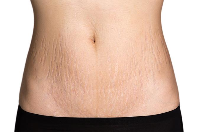 stretch marks abdomen waist