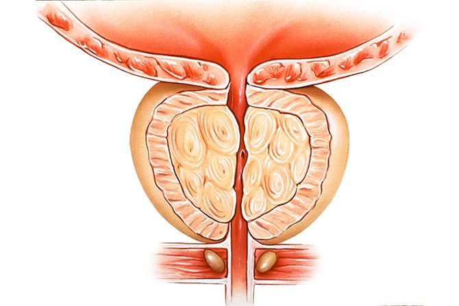 benign prostatic hyperplasia bph prostate