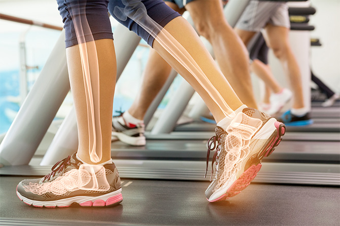 fitness treadmill bone health