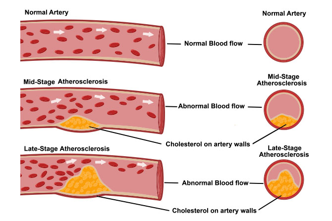 atherosclerosis artery cross section plaque buildup